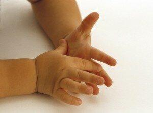 Потеют руки у ребенка