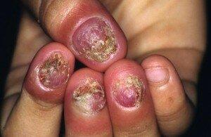 Симптомы онихомикоза рук