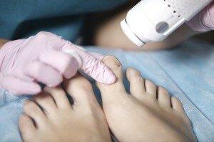 Лечение грибковой инфекции