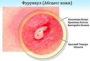 абсцедирующий фурункул