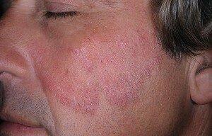 Грибок кожи лица