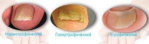 Определение поражения ногтя грибком