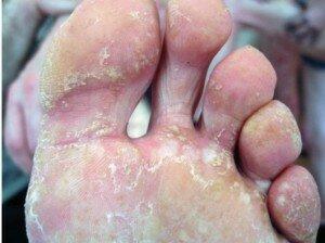 микозов стопы