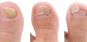 Стадии грибка ногтя