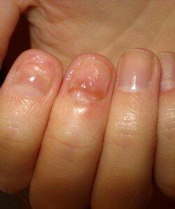Грибок начальной стадии на руке