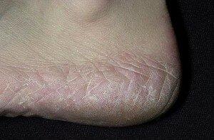 Симптомы микоза
