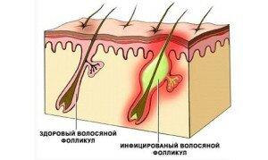 воспаление волосяных луковиц