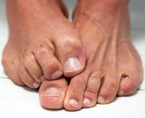 Невнимательность к зуду на ногах