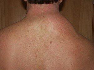 Жировик на шее