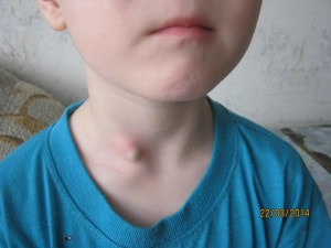 Жировик на шее у ребенка