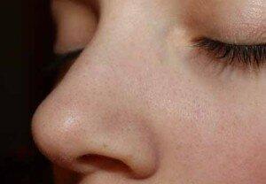 Черные точки у девушки на лице