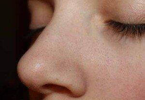 Черные точки на лице у девушки