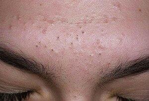 черные точки на лице