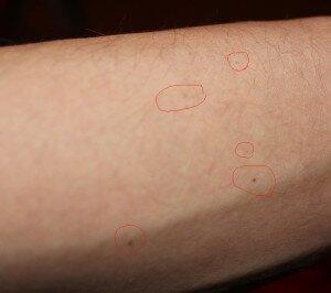 Черные точки, вызванные скоплениями меланина