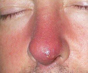 Фурункул на носу