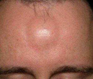 Липома под кожей на лице