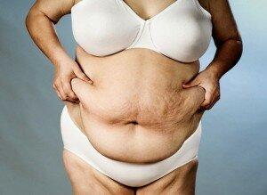 Ожирение как причина липомы
