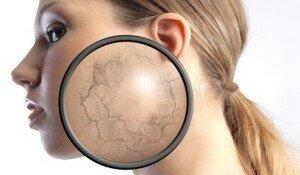 склонность к шелушению кожи