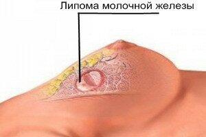 жировики в груди