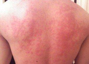 Сыпь на плечах ребенка фото