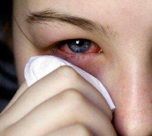 Попадание геля на слизистую глаза