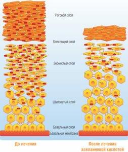 Влияние азелоиновой кислоты на кожу