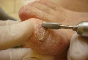 Удаление пораженного грибком ногтя