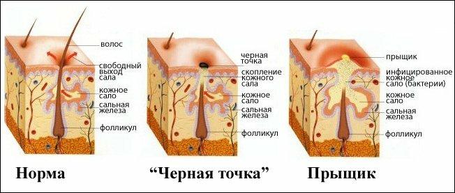 Схема кожного покрова