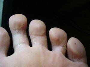 Грибок между пальцами ног у человека