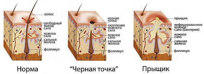 Схема работы сальных желез
